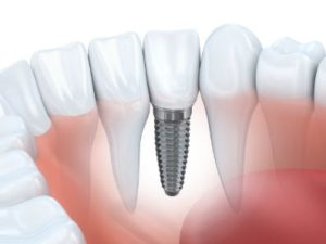 An image of an implant in the lower jaw